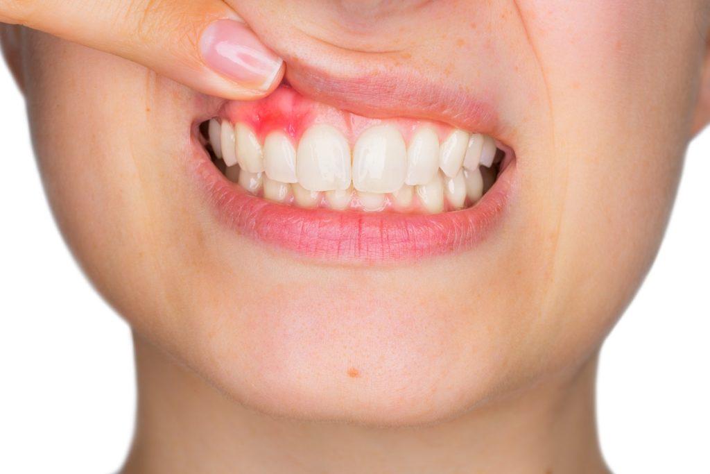 Oral problem