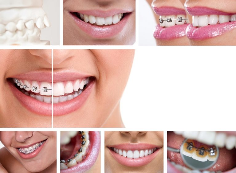 A Discrete Alternative To Traditional Metal Braces