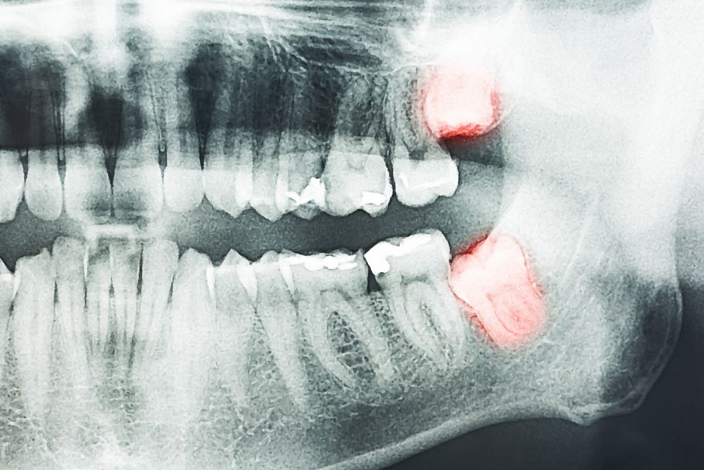 dental x ray