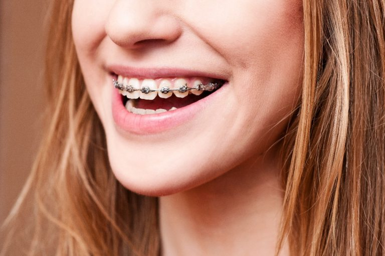 The function of braces in good oral health